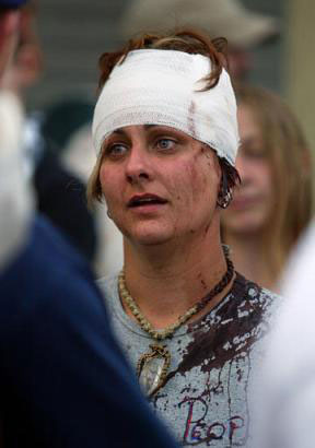 Bloodied Protester